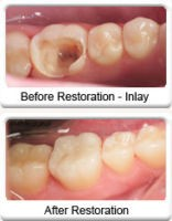 tooth filling before and after Nearbydental.com