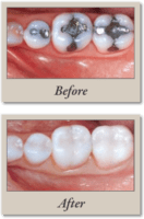 inlays, onlays before and after filling photos