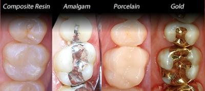 dental filling material types