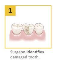 dental-crown procedure 1