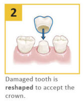 dental-crown procedure 2