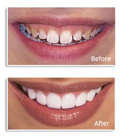 Before and after having veneer