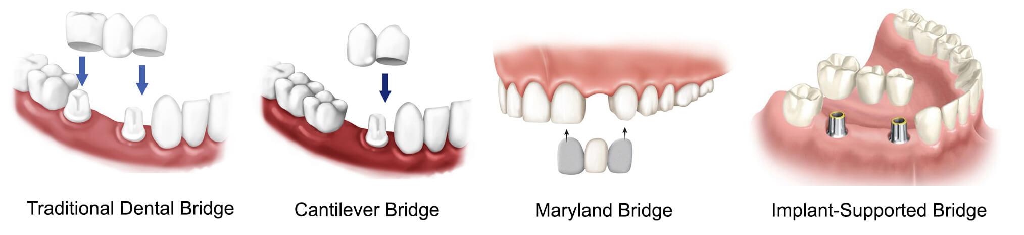 Teeth bridge types