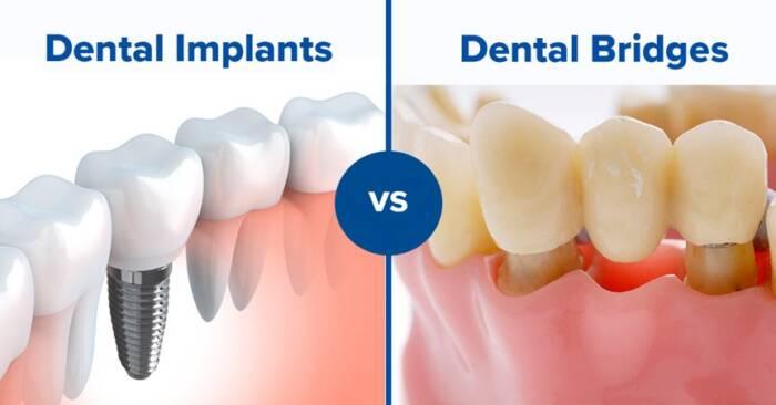 teeth bridge vs implant