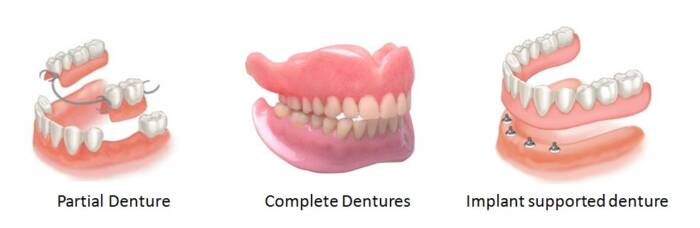 complete, implant supported and partial dentures