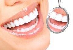 Teeth whitening dental clinic in Dunedin NZ