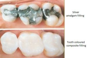 composite before and after