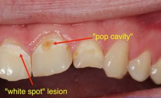pop cavities in teeth