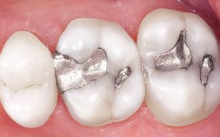 silver amalgam