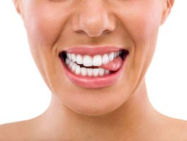 Dental implant guide on procedure, cost and types