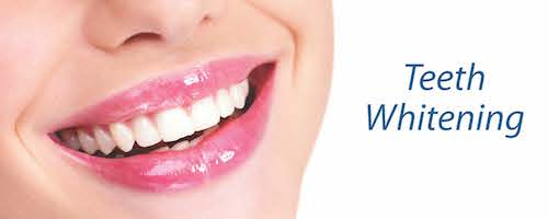 Teeth Whitening options