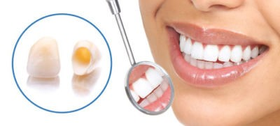 Dental Crowns Guide, procedure, cost, types and does it hurt?