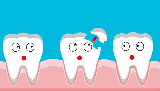 Teeth Bonding Costs, Procedure, Advantages, Disadvantages