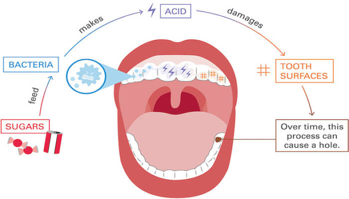 Dental cavity and decay causes and process illustration